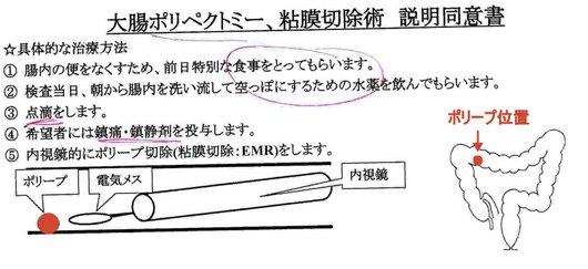 1-17.09.12 ポリープ位置と切除術.jpg